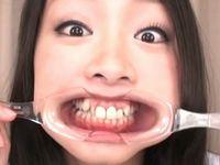 口腔フェチ向け!女性の銀歯や差し歯の裏側まで覗いちゃう口内観察プレイ!